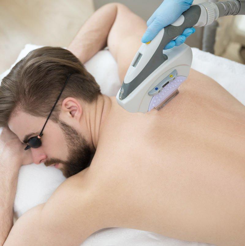 Pittsburgh Laser Hair Removal For Men